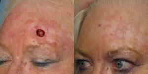 Forehead-Recontruction-After-Skin-Cancer-Excision-Skin-Cancer-And-Reconstructive-Surgery-Center-Newport-Beach-Orange-County