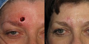 Forehead-Recontruction-After-Skin-Cancer-Excision-Skin-Cancer-And-Reconstructive-Surgery-Center-Newport-Beach-Orange-County3