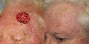 Forehead-Recontruction-After-Skin-Cancer-Excision-Skin-Cancer-And-Reconstructive-Surgery-Center-Newport-Beach-Orange-County4