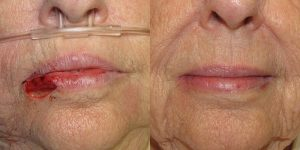 Lip-Reconstruction-After-Skin-Cancer-Excision-Skin-Cancer-And-Reconstructive-Surgery-Center-Newport-Beach-Orange-County
