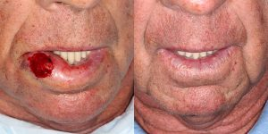 Lip-Reconstruction-After-Skin-Cancer-Excision-Skin-Cancer-And-Reconstructive-Surgery-Center-Newport-Beach-Orange-County2