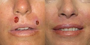 Lip-Reconstruction-After-Skin-Cancer-Excision-Skin-Cancer-And-Reconstructive-Surgery-Center-Newport-Beach-Orange-County3