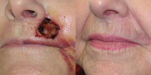 Lip-Reconstruction-After-Skin-Cancer-Excision-Skin-Cancer-And-Reconstructive-Surgery-Center-Newport-Beach-Orange-County4