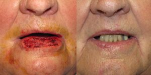 Lip-Reconstruction-After-Skin-Cancer-Excision-Skin-Cancer-And-Reconstructive-Surgery-Center-Newport-Beach-Orange-County5