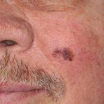 Melanoma-Cheek-Skin-Cancer-and-Reconstructive-Surgery-Center-Orange-County