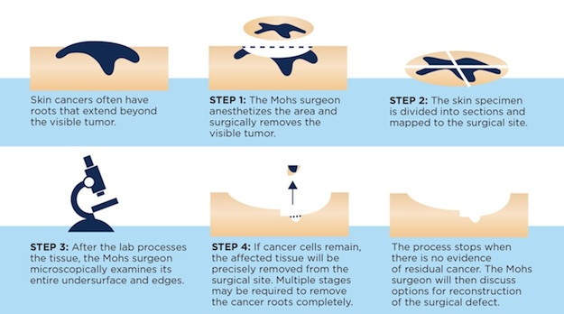 Mohs-Surgery-Skin-Cancer-And-Reconstructive-Surgery-Center