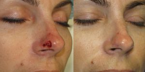 Nose-Reconstruction-After-Skin-Cancer-Excision-Skin-Cancer-And-Reconstructive-Surgery-Center-Newport-Beach-Orange-County