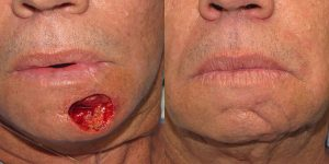 Reconstructive-Surgery-Skin-Cancer-Chin-Orange-County-Skin-Cancer-Reconstructive-Surgery-Center
