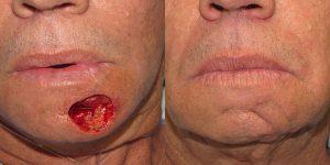 Reconstructive-Surgery-Skin-Cancer-Chin-Orange-County-Skin-Cancer-Reconstructive-Surgery-Center