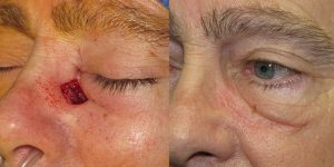 Reconstructive-Surgery-Skin-Cancer-Eyelid-Orange-County-Skin-Cancer-Reconstructive-Surgery-Center