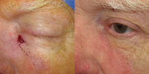 Reconstructive-Surgery-Skin-Cancer-Eyelid-Orange-County-Skin-Cancer-Reconstructive-Surgery-Center2