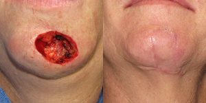 Reconstructive-Surgery-Skin-Cancer-SCC-Chin-Orange-County-Skin-Cancer-Reconstructive-Surgery-Center2