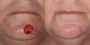 Reconstructive-Surgery-Skin-Cancer-SCC-Chin-Orange-County-Skin-Cancer-Reconstructive-Surgery-Center6