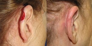 Reconstructive-Surgery-Skin-Cancer-Skin-Cancer-Ear-Orange-County-Skin-Cancer-Reconstructive-Surgery-Center
