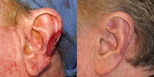 Reconstructive-Surgery-Skin-Cancer-Skin-Cancer-Ear-Orange-County-Skin-Cancer-Reconstructive-Surgery-Center1