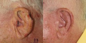 Reconstructive-Surgery-Skin-Cancer-Skin-Cancer-Ear-Orange-County-Skin-Cancer-Reconstructive-Surgery-Center5