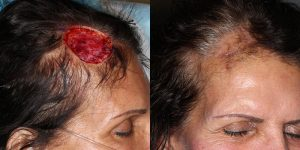 Scalp-Reconstruction-After-Skin-Cancer-Excision-Skin-Cancer-And-Reconstructive-Surgery-Center-Newport-Beach-Orange-County3