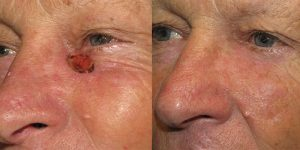 Skin-Cancer-On-Cheek-Skin-Cancer-Reconstructive-Surgery-Center5