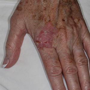 Body-Hand-Reconstruction-After-Skin-Cancer-Excision-Skin-Cancer-And-Reconstructive-Surgery-Center-Newport-Beach-Orange-County300x300