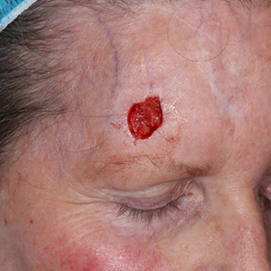 Forehead-Reconstruction-After-Skin-Cancer-Excision-Skin-Cancer-And-Reconstructive-Surgery-Center-Newport-Beach-Orange-County300x300