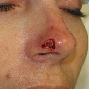 Nose-Reconstruction-After-Skin-Cancer-Excision-Skin-Cancer-And-Reconstructive-Surgery-Center-Newport-Beach-Orange-County300x300