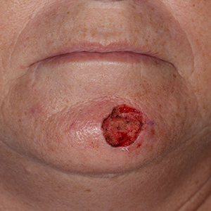 Reconstructive-Surgery-Skin-Cancer-SCC-Chin-Orange-County-Skin-Cancer-Reconstructive-Surgery-Center300x300