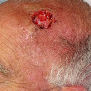 Scalp-Reconstruction-After-Skin-Cancer-Excision-Skin-Cancer-And-Reconstructive-Surgery-Center-Newport-Beach-Orange-County300x300