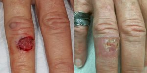 Skin-Cancer-And-Reconstructive-Surgery-Center-Skin-Cancer-Body (2)