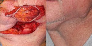 Skin-Cancer-And-Reconstructive-Surgery-Center-Skin-Cancer-Body (4)