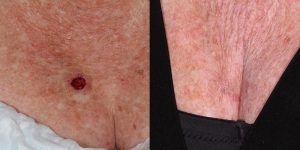 Skin-Cancer-And-Reconstructive-Surgery-Center-Skin-Cancer-Body (7)
