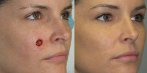 BCC-Basal-Cell-Carcinoma-Cheek-Orange-County-Skin-Cancer-Reconstructive-Surgery-Center