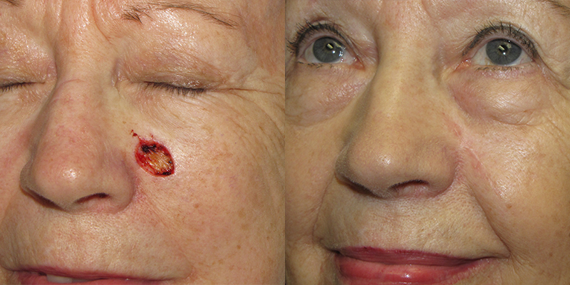 Linear Closure Skin Cancer And Reconstructive Surgery Center