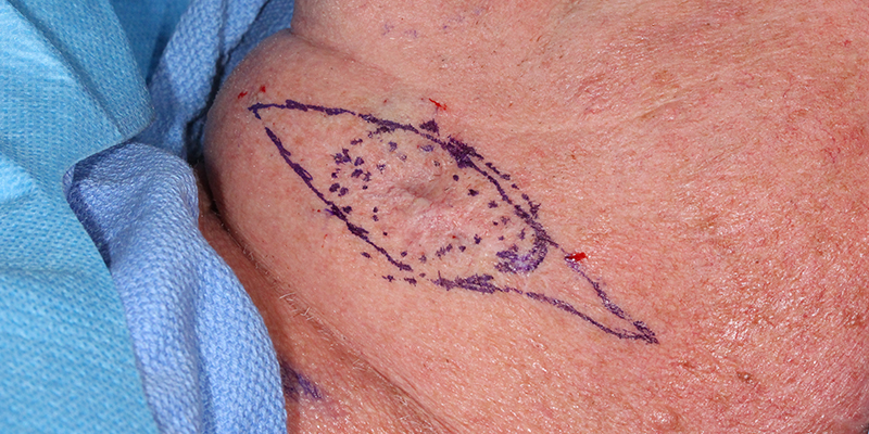 Basal Cell Carcinoma Skin Cancer And Reconstructive Surgery Center