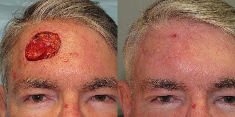 Forehead Reconstruction Gallery Skin Cancer And Reconstructive Surgery Center