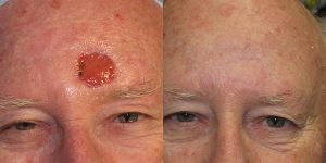 Forehead-Recontruction-After-Skin-Cancer-Excision-Skin-Cancer-And-Reconstructive-Surgery-Center-Newport-Beach-Orange-County5