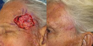 Forehead-Recontruction-After-Skin-Cancer-Excision-Skin-Cancer-And-Reconstructive-Surgery-Center-Newport-Beach-Orange-County6