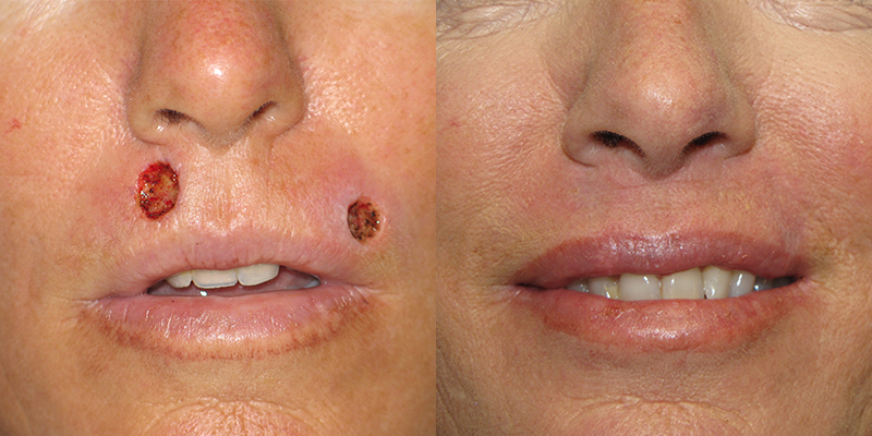 Lip Reconstruction Gallery Skin Cancer And Reconstructive