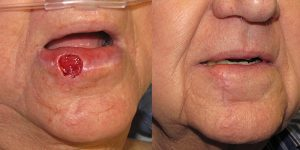 Lip-Reconstruction-After-Skin-Cancer-Excision-Skin-Cancer-And-Reconstructive-Surgery-Center-Newport-Beach-Orange-County6