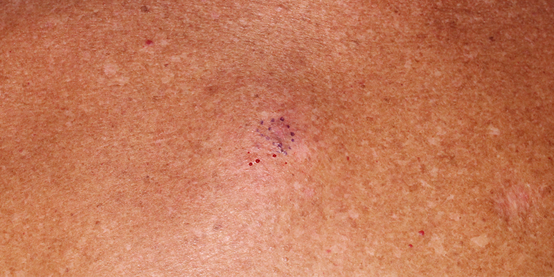 Melanoma In Situ - Treatment