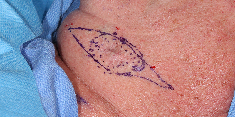 Metatypical Basal Cell Carcinoma Treatment