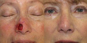 Nose-Reconstruction-After-Skin-Cancer-Excision-Skin-Cancer-And-Reconstructive-Surgery-Center-Newport-Beach-Orange-County2