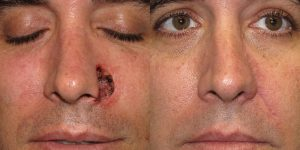 Nose-Reconstruction-After-Skin-Cancer-Excision-Skin-Cancer-And-Reconstructive-Surgery-Center-Newport-Beach-Orange-County3