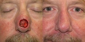 Nose-Reconstruction-After-Skin-Cancer-Excision-Skin-Cancer-And-Reconstructive-Surgery-Center-Newport-Beach-Orange-County4