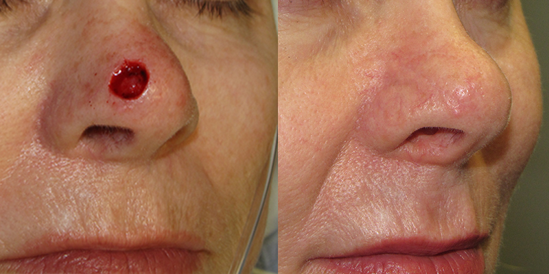Nose Reconstruction Gallery Skin Cancer And Reconstructive Surgery Center