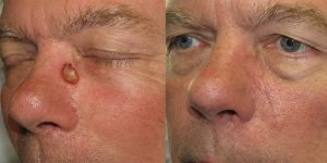 Nose-Reconstruction-After-Skin-Cancer-Excision-Skin-Cancer-And-Reconstructive-Surgery-Center-Newport-Beach-Orange-County6-1