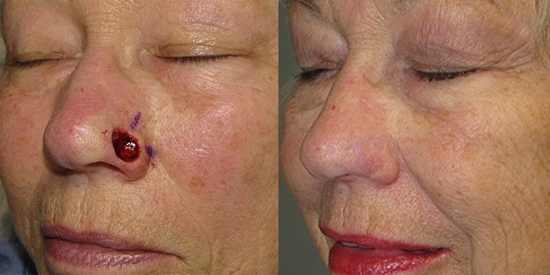 Mohs & Reconstruction of Nasal Ala