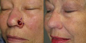 nose reconstruction after skin cancer