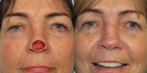 Nose-Reconstruction-After-Skin-Cancer-Excision-Skin-Cancer-And-Reconstructive-Surgery-Center-Newport-Beach-Orange-County8