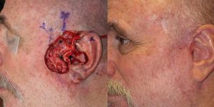 Reconstructive-Surgery-Cheek-Orange-County-Skin-Cancer-Reconstructive-Surgery-Center