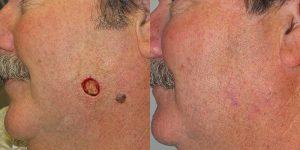 Reconstructive-Surgery-Mole-Removal-Cheek-Orange-County-Skin-Cancer-Reconstructive-Surgery-Center